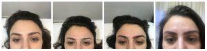 antes, durante e depois da micropigmentação